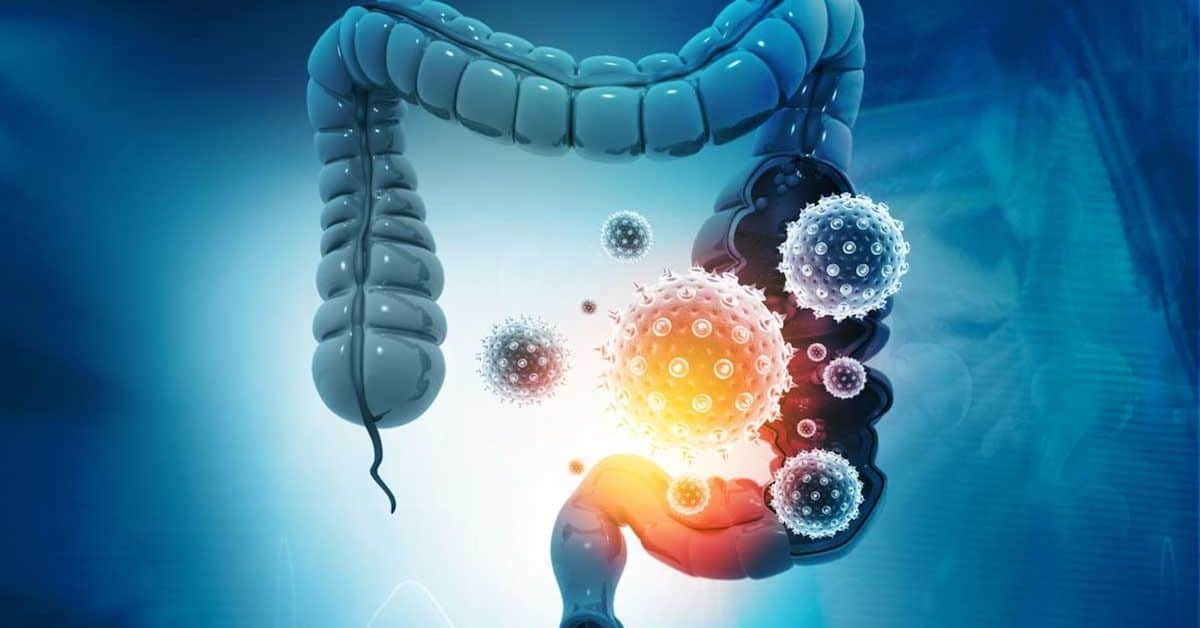 Your Gut Connection to Covid